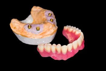 Implant Supported Dentures in Calgary